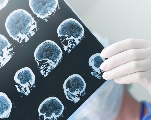 Comprendre ce qu'est l'épilepsie